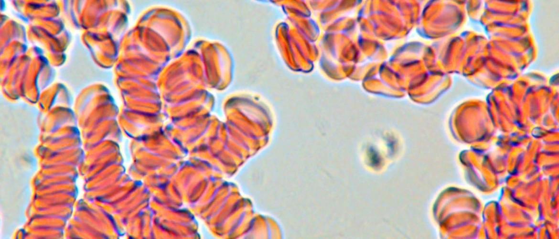 Микроскопия нативной крови, оборудование для исследования нативных препаратов в реальном времени без красителей